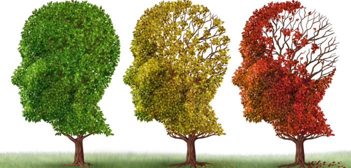 Quiz: Is It True What They Say About Alzheimer's Disease?