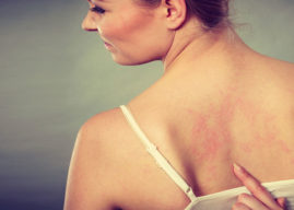 Update on Shingles: A New Vaccine, Better Self-Care and More