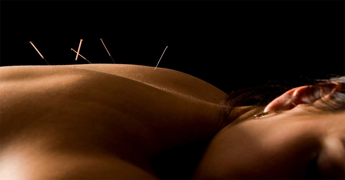 accupuncture_1200